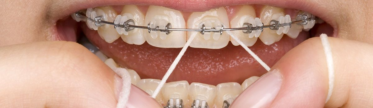 Proper Oral Hygiene in Braces