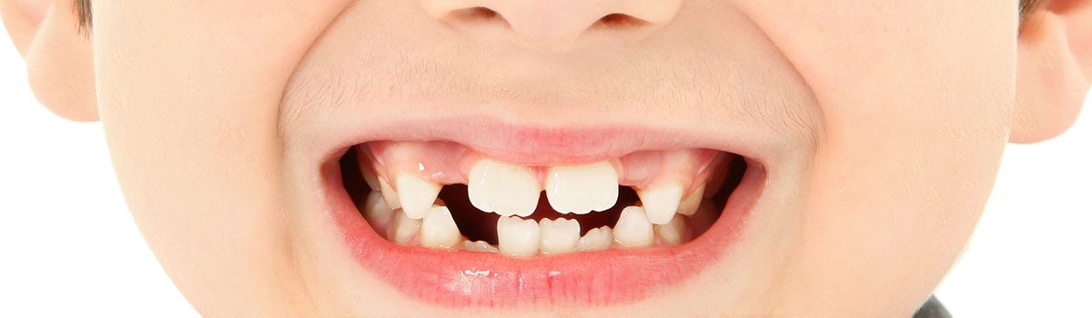 What Do I Do If I Have A Loose Tooth?